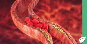 Senkung erhoehter Cholesterinwerte